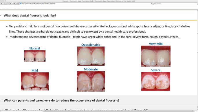 cdc dental fluorosis 3