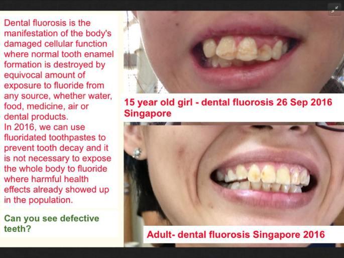dental fluorosis sg1