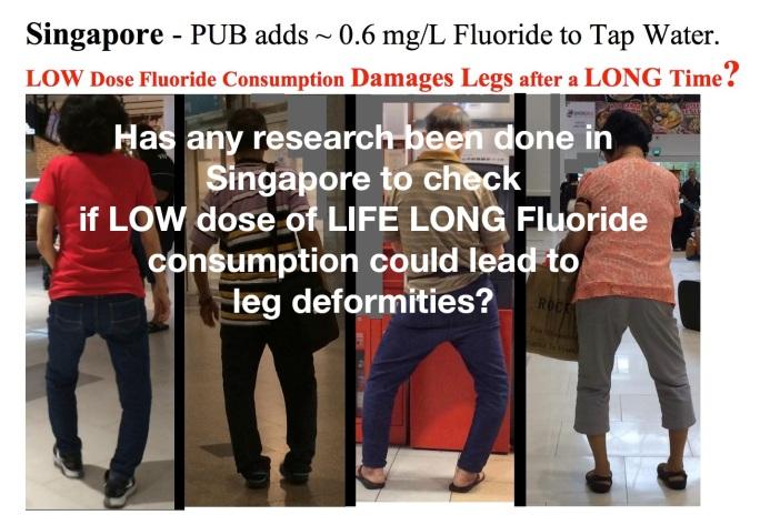 fluorosis skeletal sg